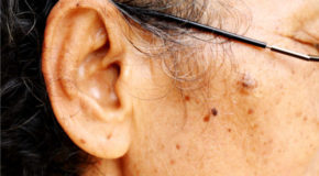 Breakthrough In Mice Could Lead To New Therapy For Hearing Loss